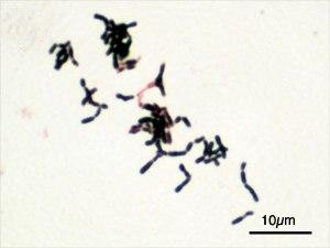 Bacterias Gram positivas Alto contenido en C+G